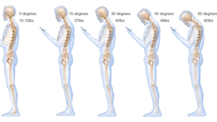 Increased force exerted on neck with increasing angle of curvature_Kew Osteopathic Clinic
