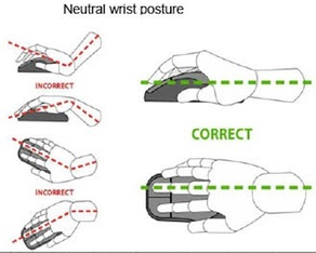 Diagrams of Correct and Incorrect Wrist Posture_Kew Osteopathic Clinic